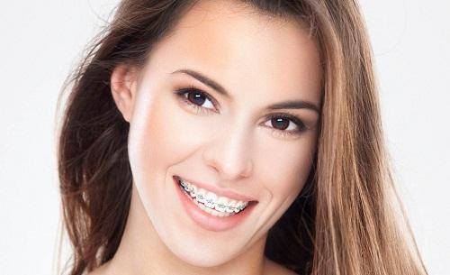 Nha khoa Dr Lê Hưng – Địa chỉ niềng răng thẩm mỹ chất lượng cao