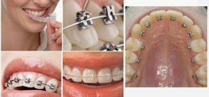 Cách niềng răng nhanh nhất chính là cách niềng răng ưng ý nhất