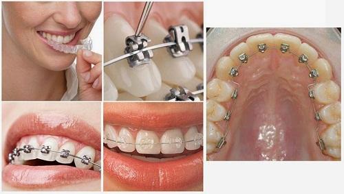 Niềng răng thẩm mỹ hiệu quả tại Nha Khoa Lê Hưng