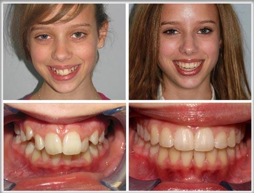 Khi răng mọc lệch nên niềng răng hay bọc sứ tốt hơn?