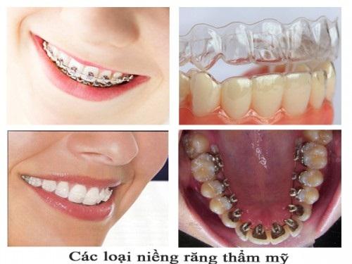 Phương pháp nào niềng răng nhanh nhất hiện nay?