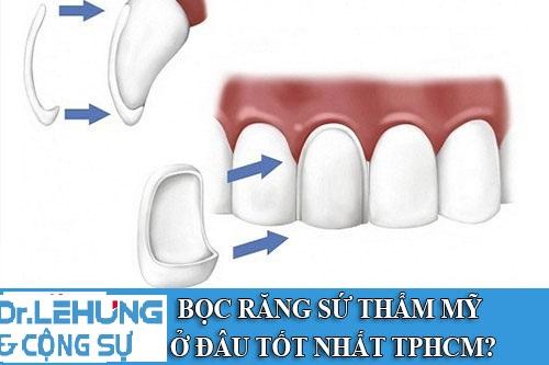 boc-rang-su-tham-my-o-dau-tot-nhat-hn