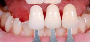 Cách làm răng sứ nhanh nhất – Bác sỹ tư vấn