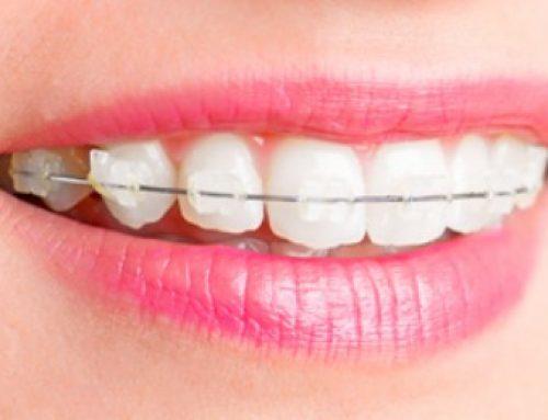 Niềng răng thẩm mỹ hiện nay có những loại nào