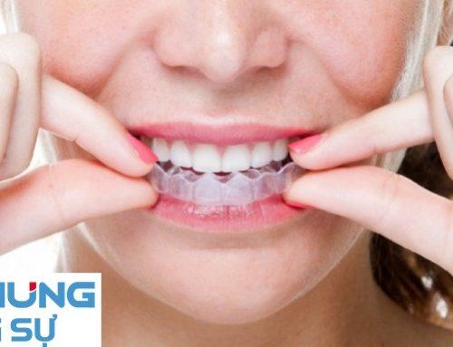 Răng không đều thì phải làm như thế nào?
