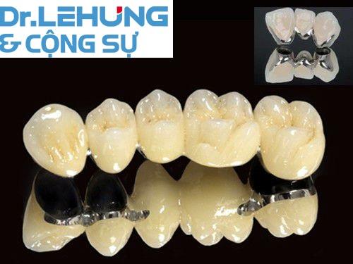 rang-su-kim-loai-thuong-co-tot-khong-3