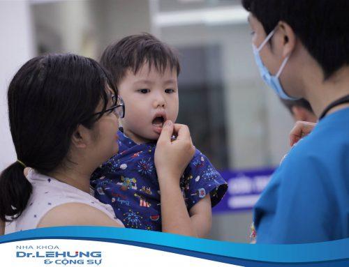 Những điều cần biết trước khi điều trị chỉnh nha răng không đều