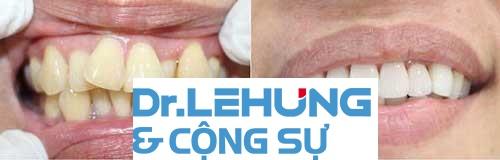 Boc-rang-su-ham-tren-moc-lon-xon-11052016