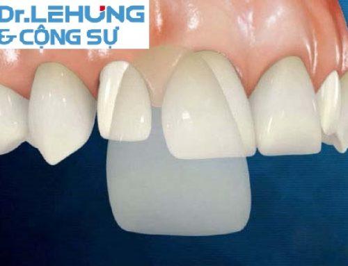 Răng sứ kim loại thường là từ rất lâu