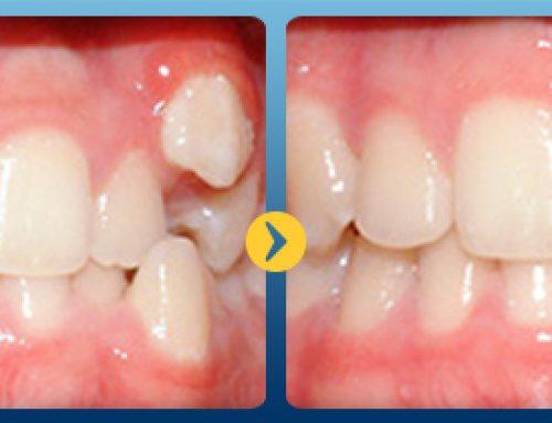 99% người chỉnh răng tin dùng cách niềng răng nhanh nhất