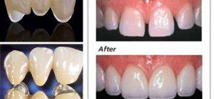 Đặc điểm 3 loại răng sứ kim loại HOT nhất năm 2017 – 2018