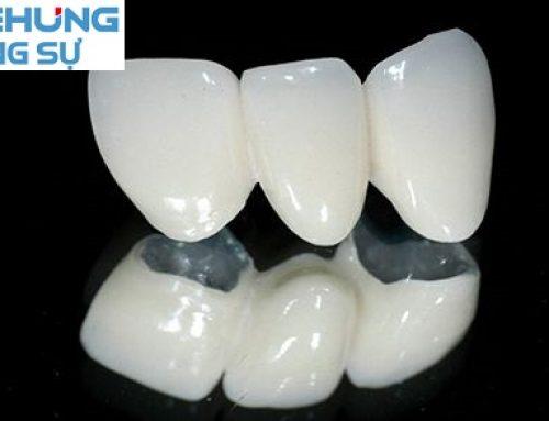 Niềng răng mắc cài sứ giá bao nhiêu?