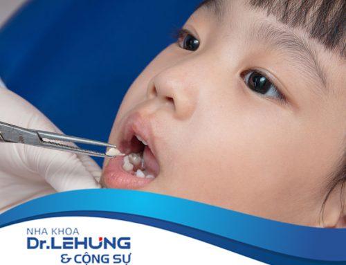 Bao nhiêu tuổi có thể niềng răng ?