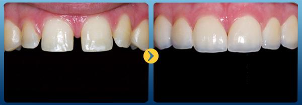 hiệu quả bọc răng sứ thẩm mỹ