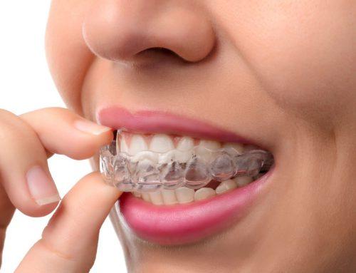 Veneers sứ so với niềng răng hoặc Invisalign